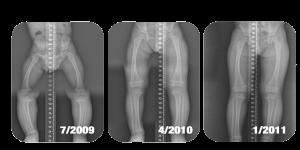 X-Rays-pediatric-300x150