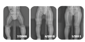 X-Rays-pediatric-300x150